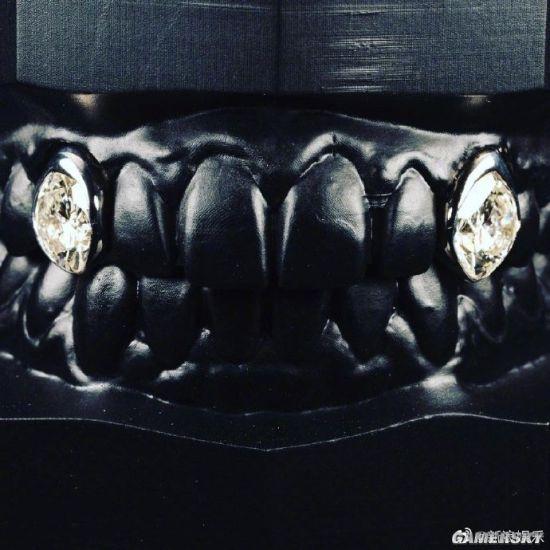 美国歌手在牙上镶12克拉钻石 总价值达160万美元